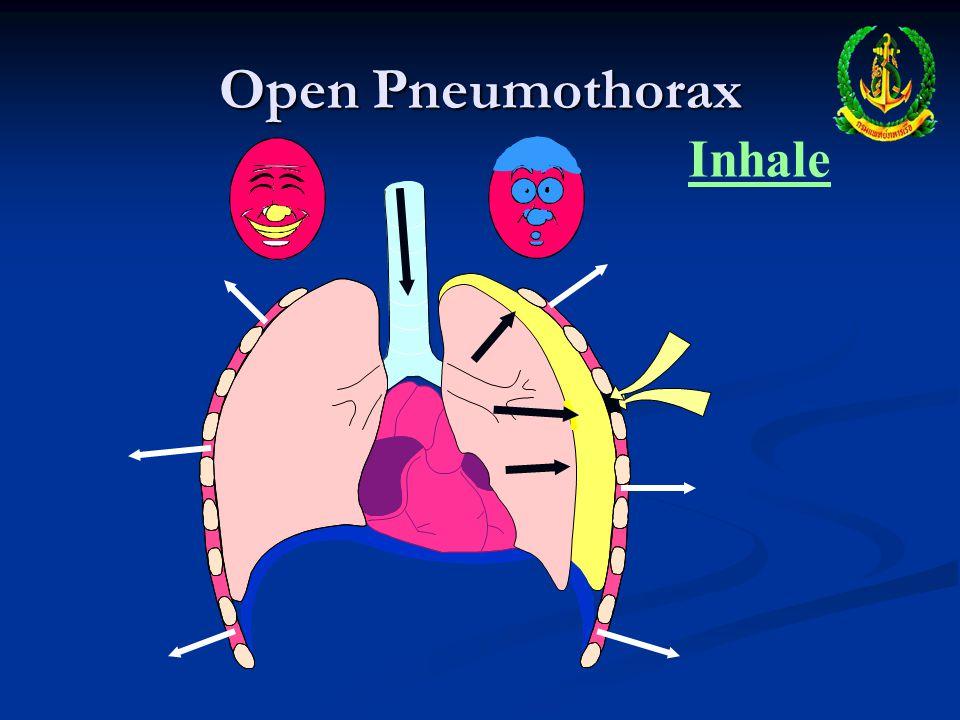 Open Pneumothorax Inhale