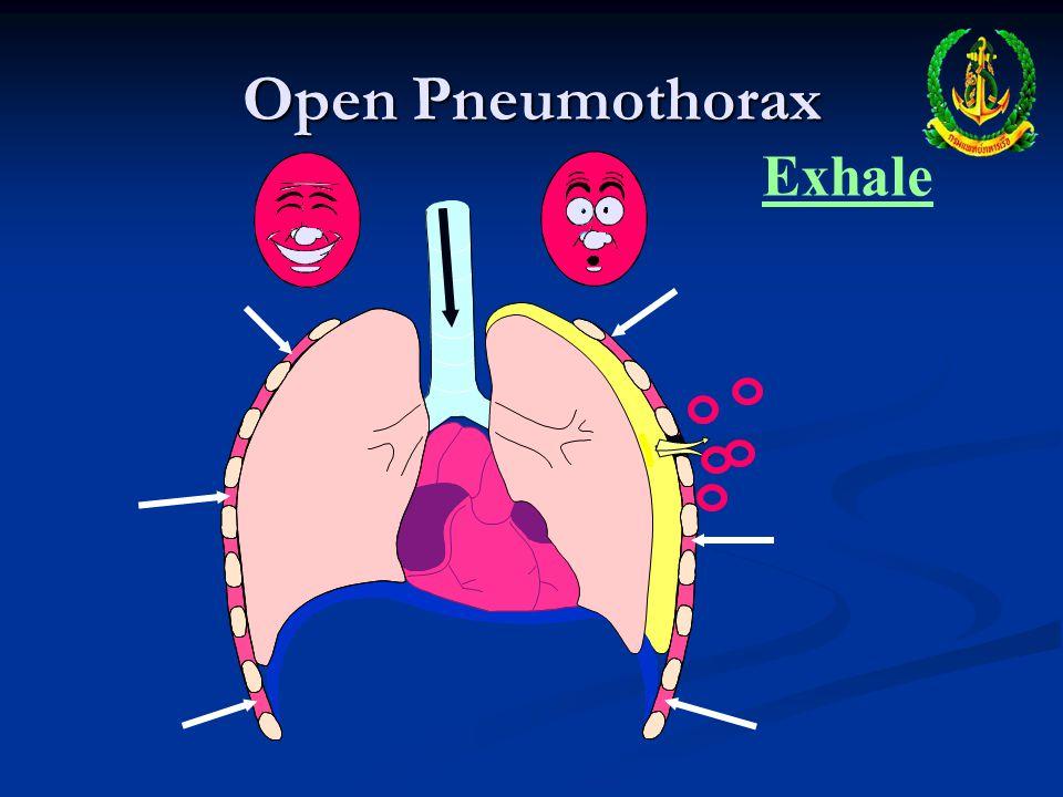 Open Pneumothorax Exhale