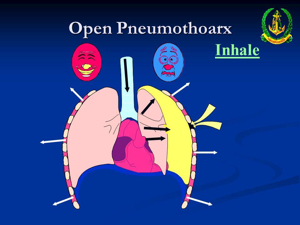 Open Pneumothoarx Inhale