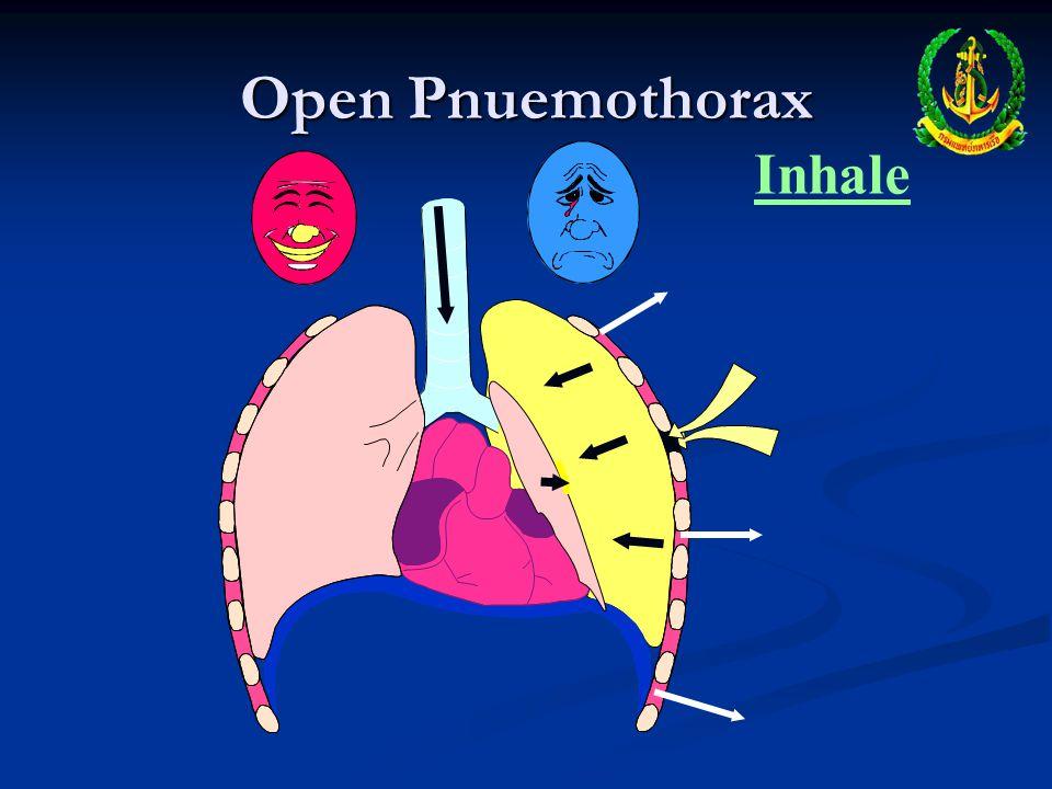 Open Pnuemothorax Inhale