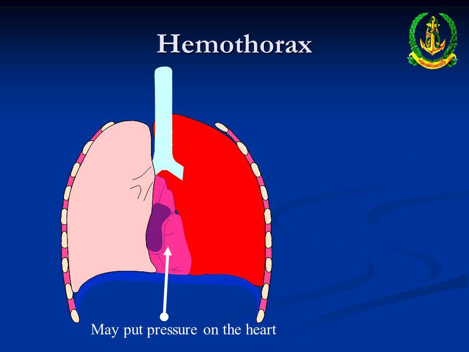 Hemothorax May put pressure on the heart