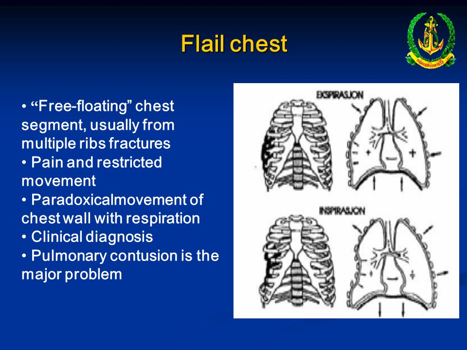 Flail chest Free-floating chest segment, usually from multiple ribs fractures. Pain and restricted movement.