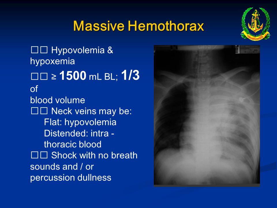 Massive Hemothorax  Hypovolemia & hypoxemia  ≥ 1500 mL BL; 1/3 of