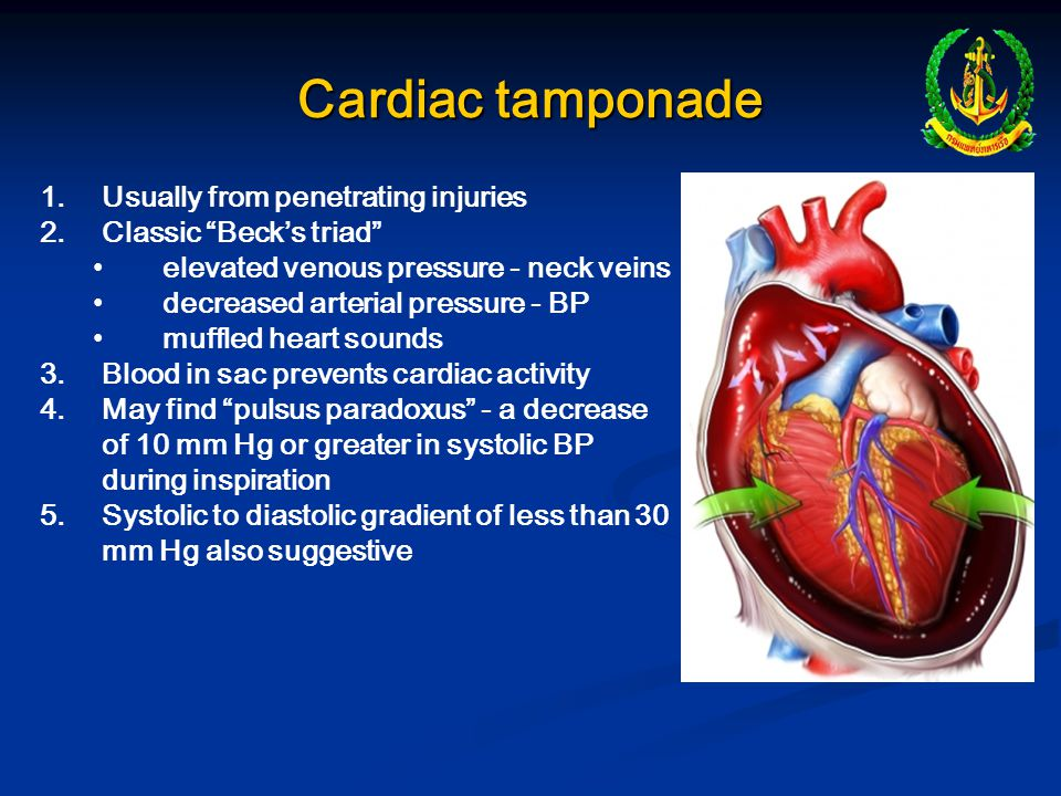 Cardiac tamponade Usually from penetrating injuries