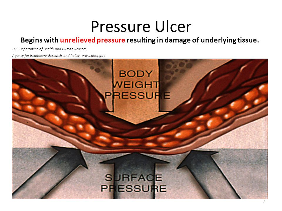 Pressure Ulcer Begins with unrelieved pressure resulting in damage of underlying tissue. U.S. Department of Health and Human Services.