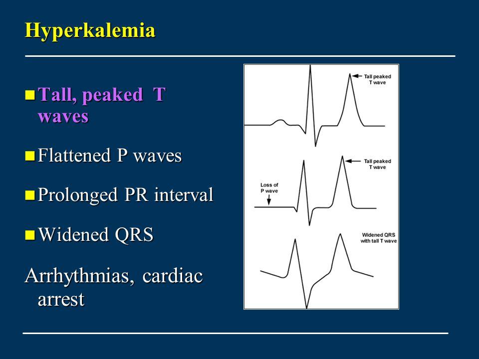 Arrhythmias, cardiac arrest