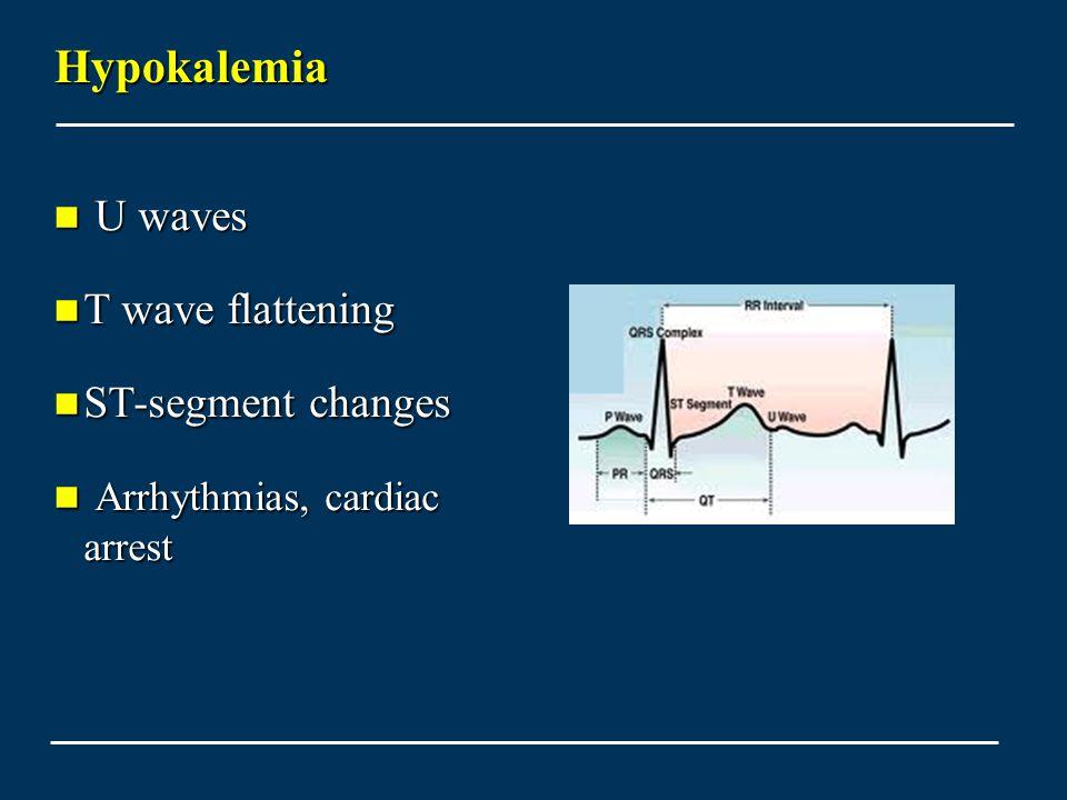 Hypokalemia U waves T wave flattening ST-segment changes