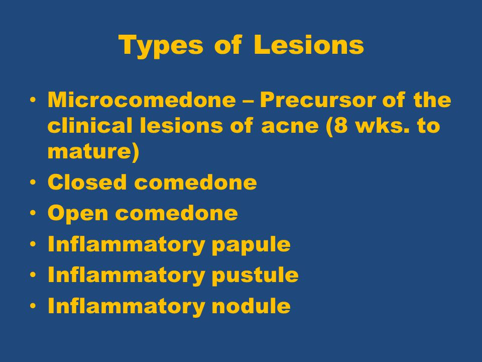 Types of Lesions Microcomedone – Precursor of the clinical lesions of acne (8 wks. to mature) Closed comedone.