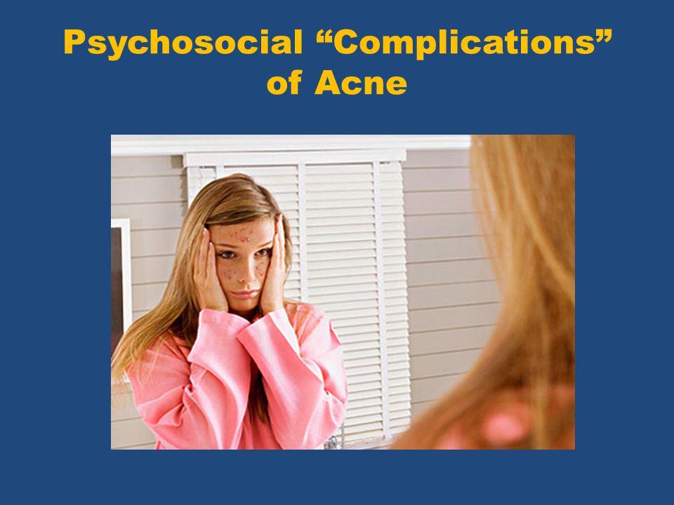Psychosocial Complications of Acne