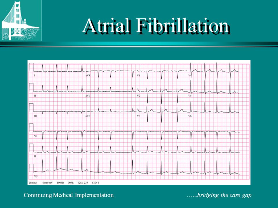 Atrial Fibrillation Continuing Medical Implementation …...bridging the care gap.