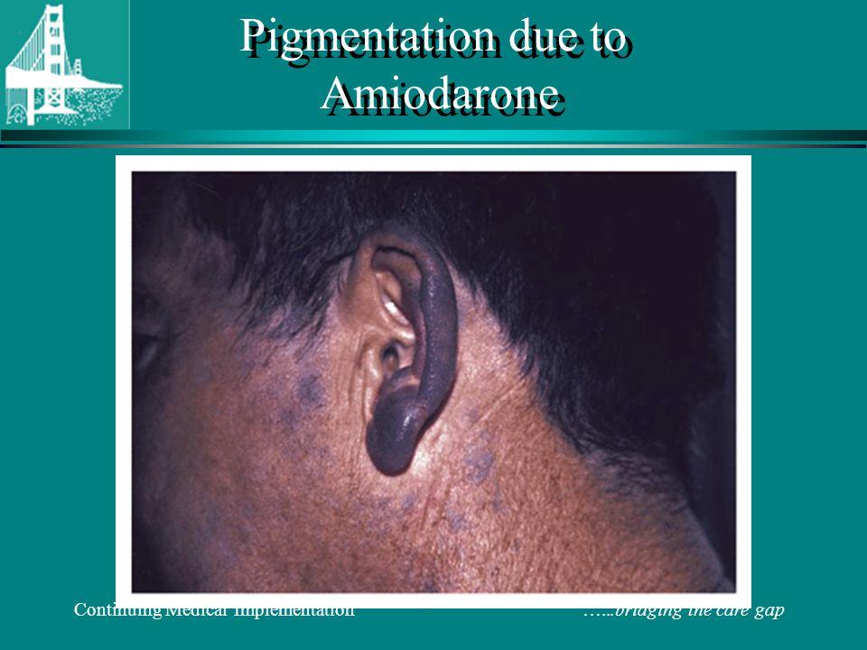 Pigmentation due to Amiodarone