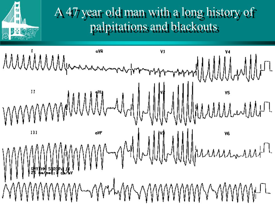 A 47 year old man with a long history of palpitations and blackouts