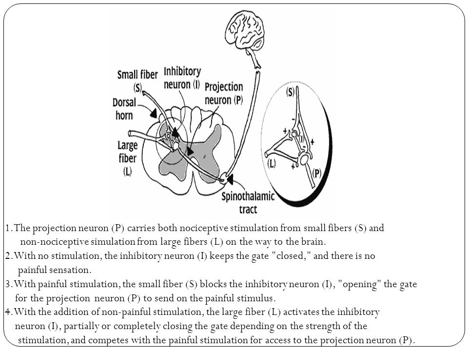 1.The projection neuron (P) carries both nociceptive stimulation from small fibers (S) and