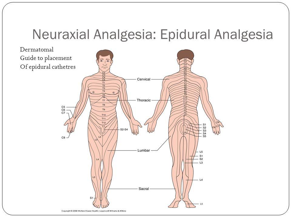 Neuraxial Analgesia: Epidural Analgesia
