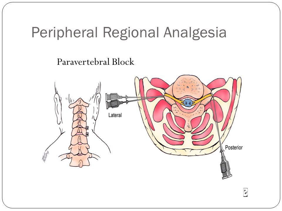Peripheral Regional Analgesia