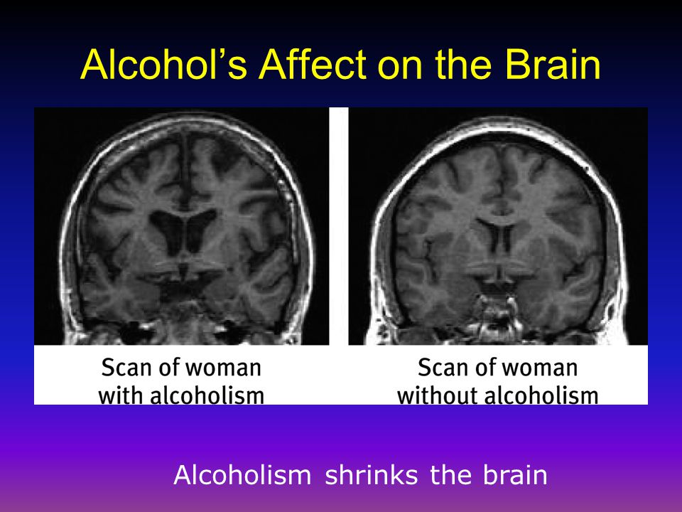 Alcohol's Affect on the Brain