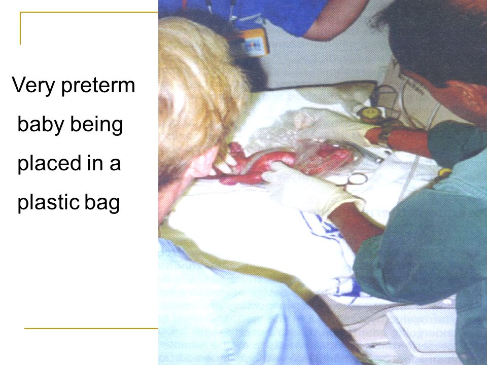 baby being placed in a plastic bag Very preterm