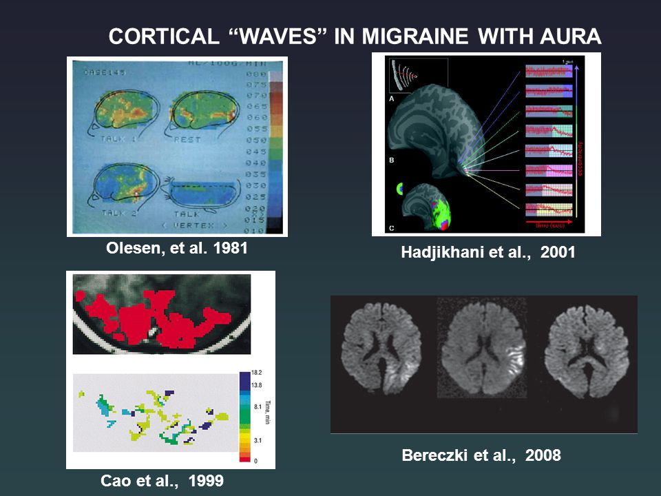 CORTICAL WAVES IN MIGRAINE WITH AURA