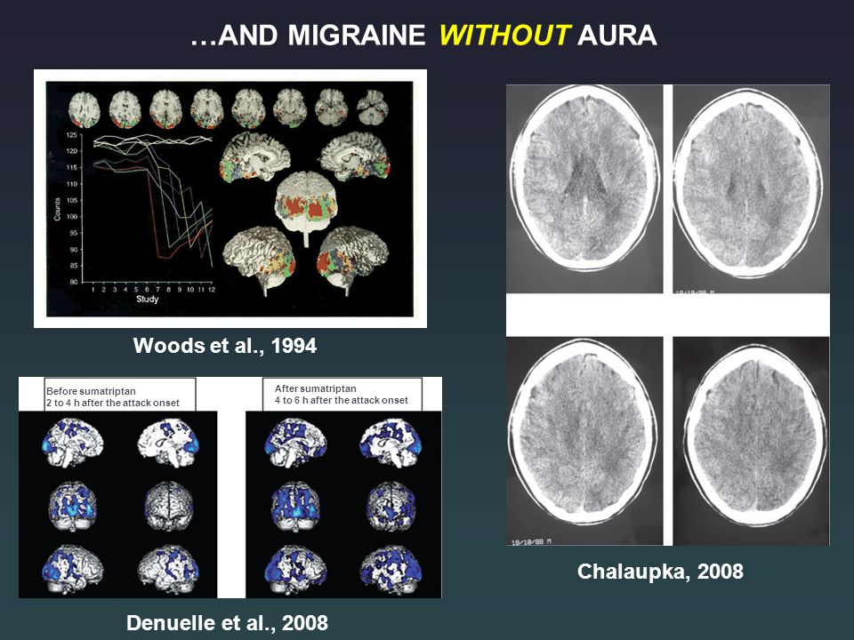 …AND MIGRAINE WITHOUT AURA