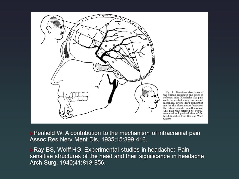 Penfield W. A contribution to the mechanism of intracranial pain
