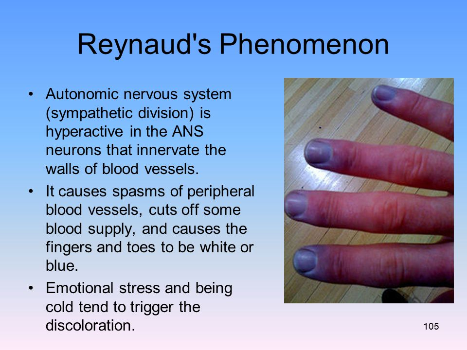 Reynaud s Phenomenon Autonomic nervous system (sympathetic division) is hyperactive in the ANS neurons that innervate the walls of blood vessels.