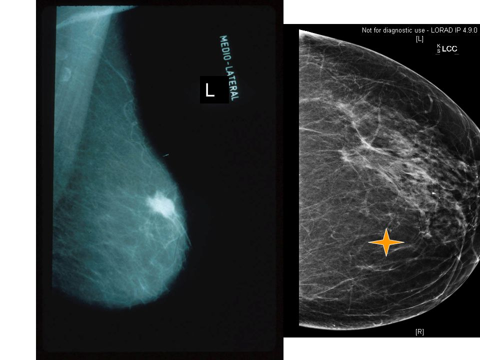 L This is a typical spiculated density representing cancer as seen on mammogram