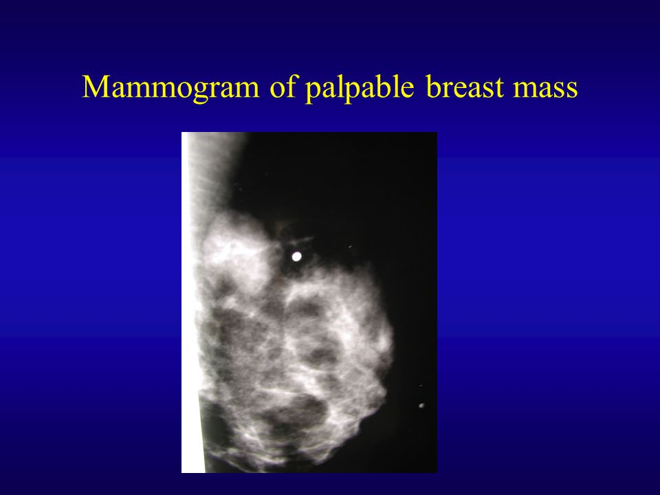 Mammogram of palpable breast mass