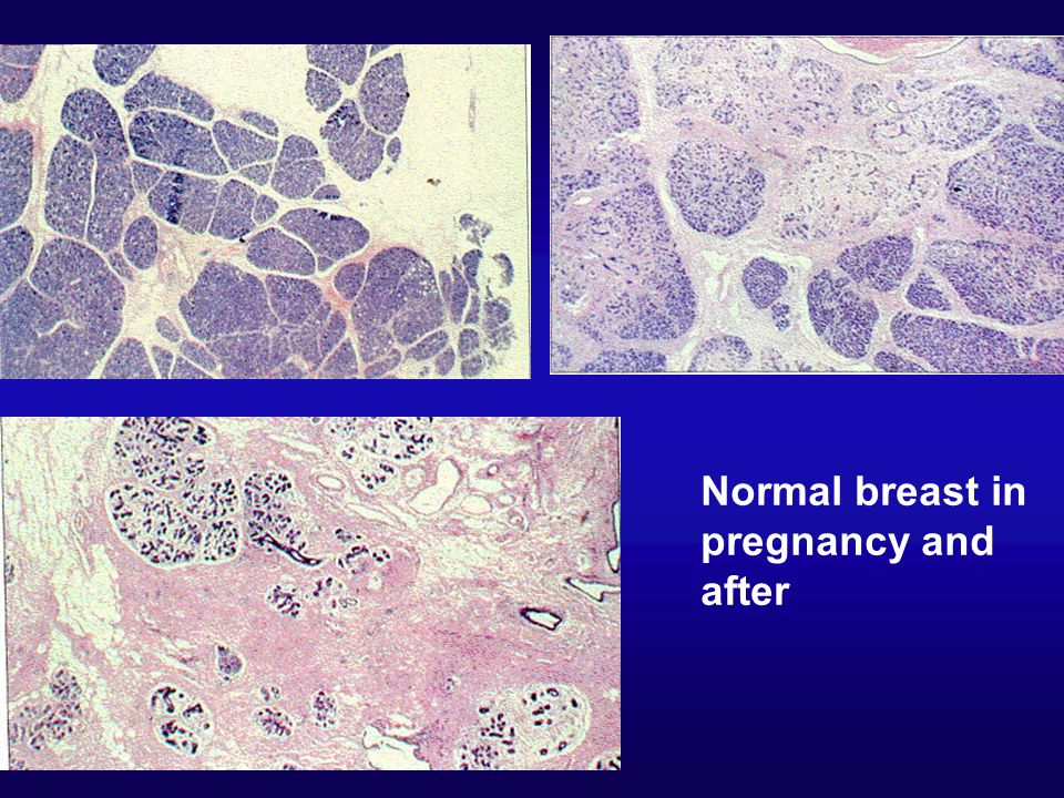 Normal breast in pregnancy and after