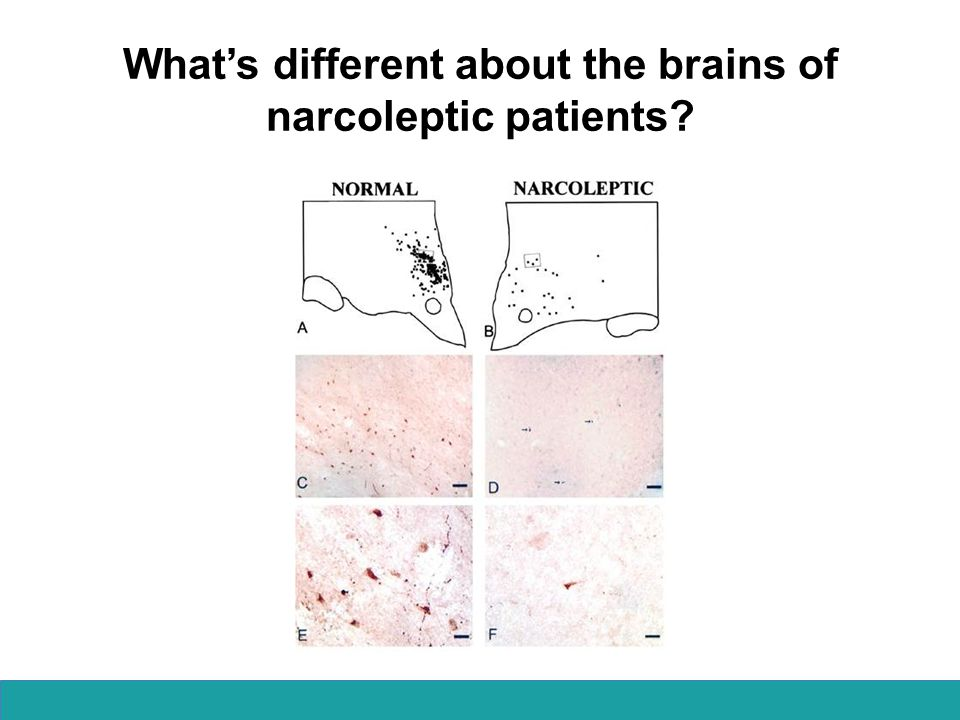 What's different about the brains of narcoleptic patients