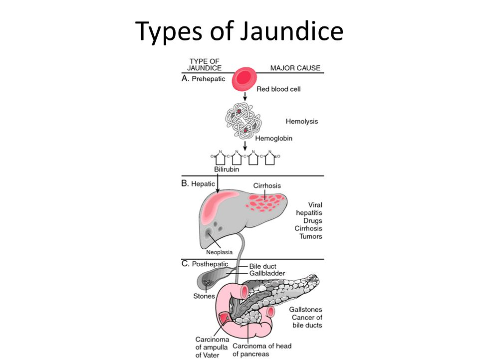 Types of Jaundice