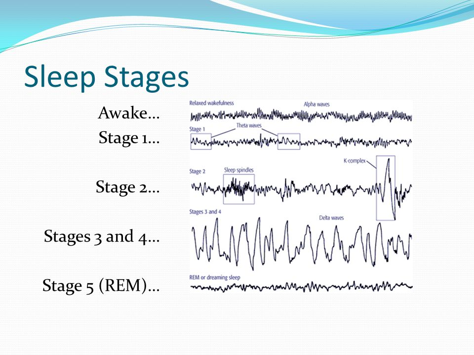 Sleep Stages Awake… Stage 1… Stage 2… Stages 3 and 4… Stage 5 (REM)…