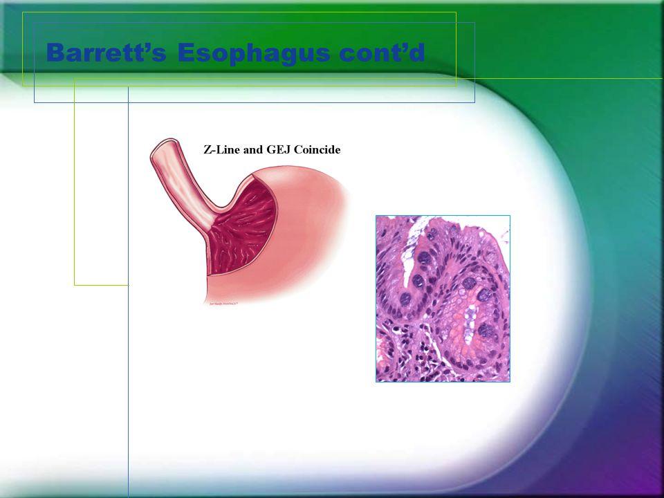 Barrett's Esophagus cont'd