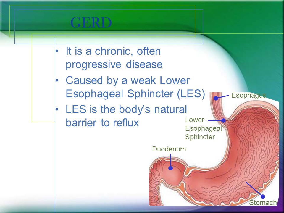 GERD It is a chronic, often progressive disease