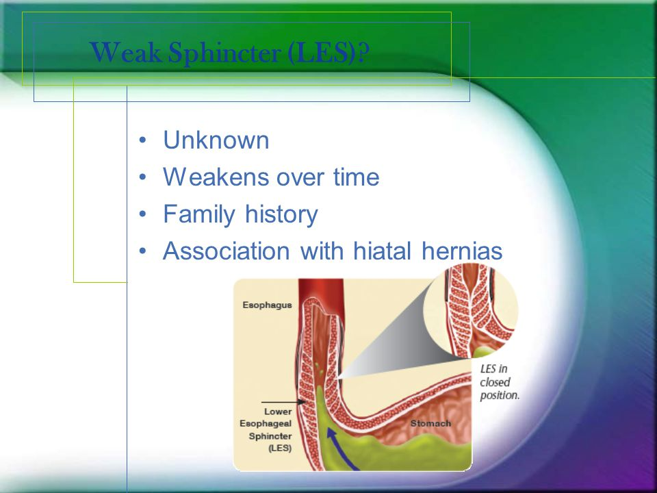 Weak Sphincter (LES) Unknown Weakens over time Family history