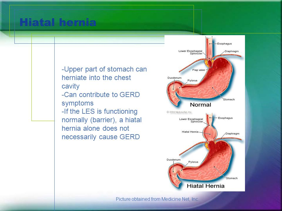 Hiatal hernia -Upper part of stomach can herniate into the chest cavity. -Can contribute to GERD symptoms.