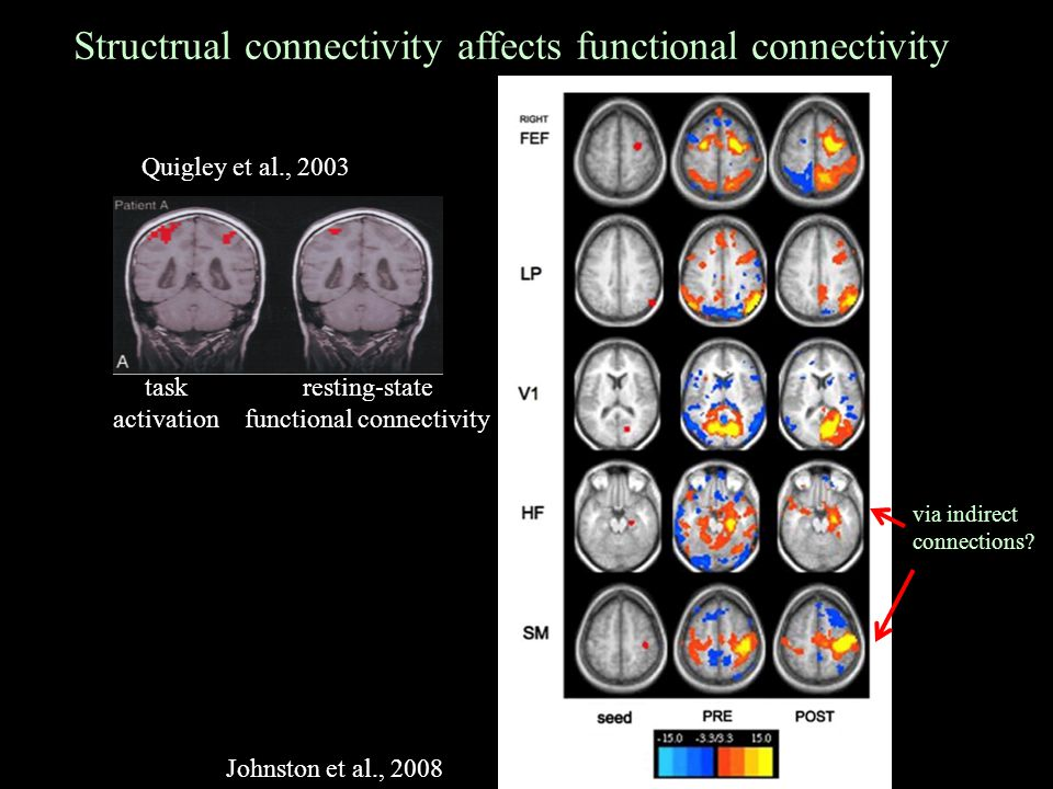 Structrual connectivity affects functional connectivity