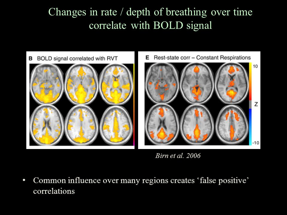 Changes in rate / depth of breathing over time correlate with BOLD signal