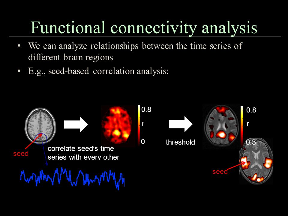 Functional connectivity analysis