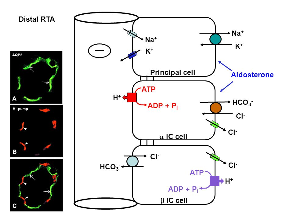 Distal RTA Na+ K+ Na+ K+ Aldosterone. Principal cell. H+ ATP. ADP + Pi. HCO3- Cl- Cl- a IC cell.