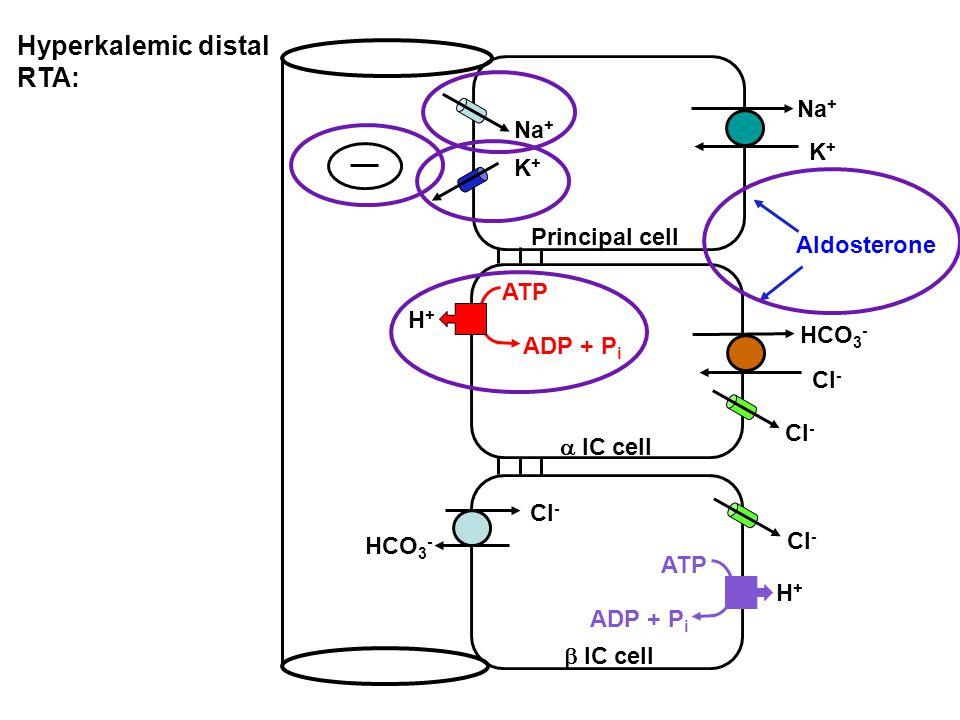 Hyperkalemic distal RTA:
