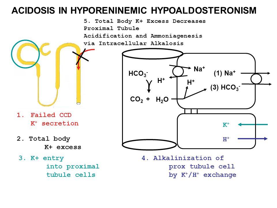 ACIDOSIS IN HYPORENINEMIC HYPOALDOSTERONISM