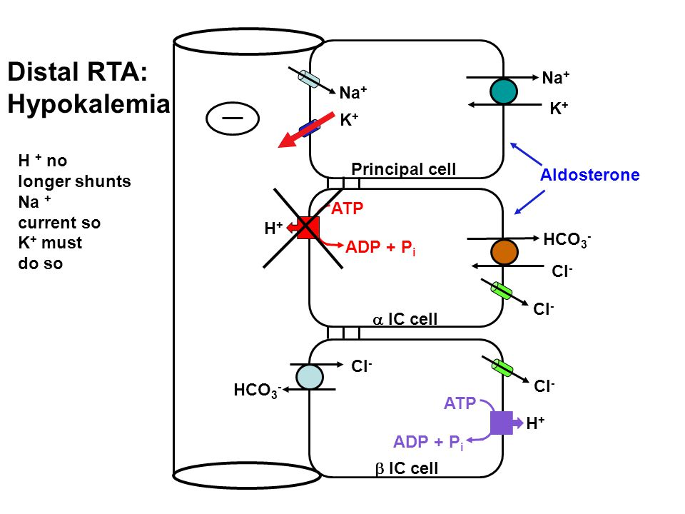 Distal RTA: Hypokalemia
