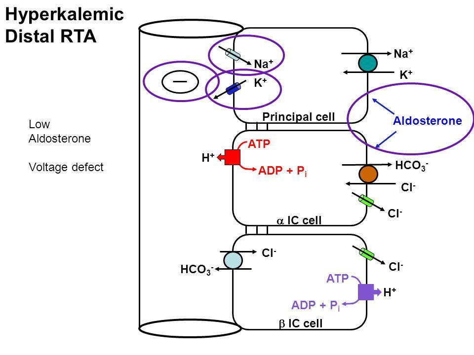 Hyperkalemic Distal RTA