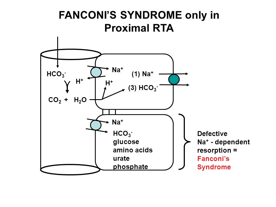 FANCONI'S SYNDROME only in Proximal RTA