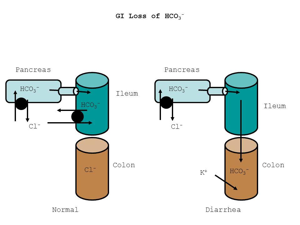 GI Loss of HCO3- Pancreas. Pancreas. HCO3- Cl- HCO3- Cl- Ileum. HCO3- K+ HCO3- Ileum. Colon.