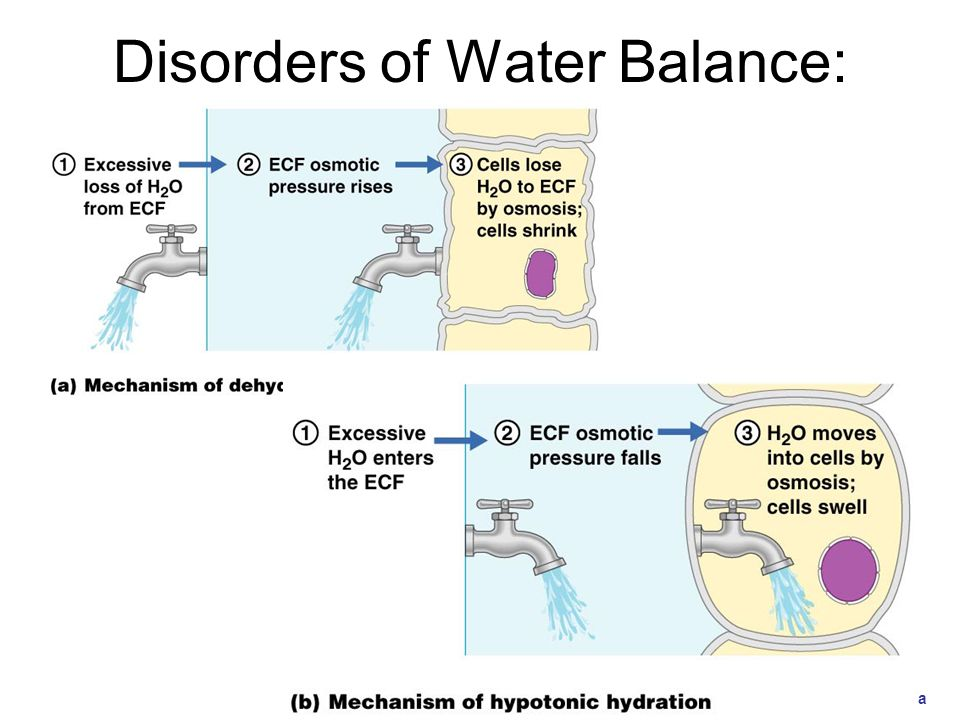 Disorders of Water Balance: