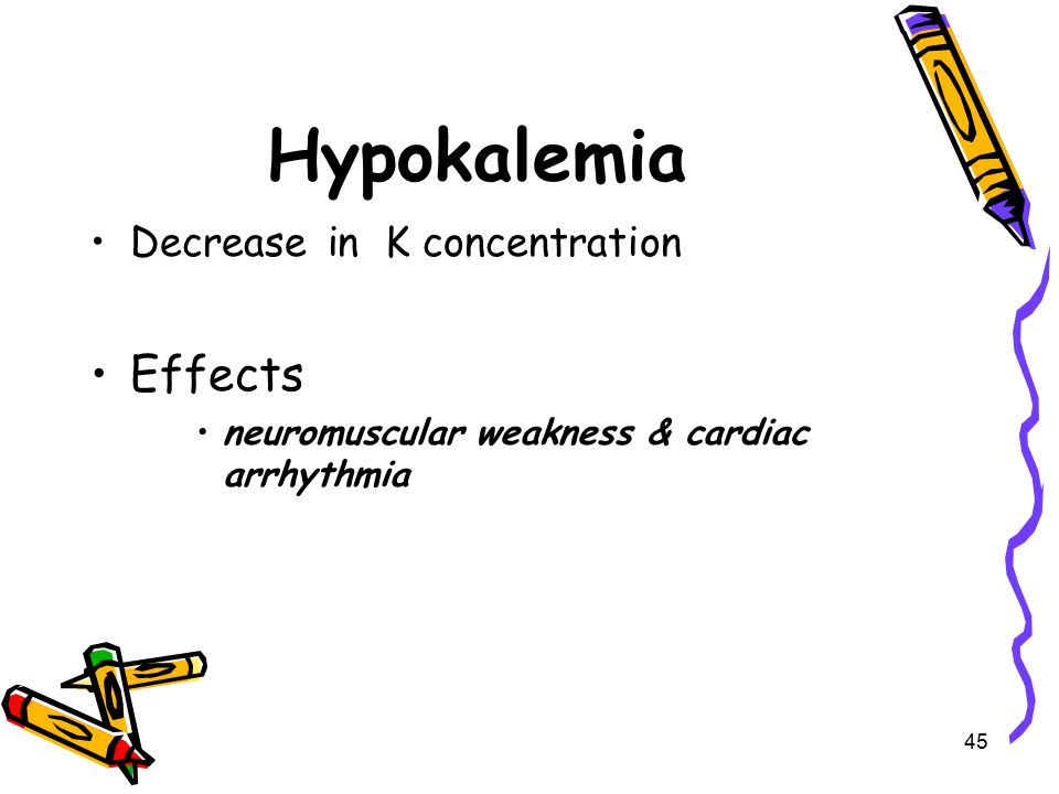 Hypokalemia Effects Decrease in K concentration