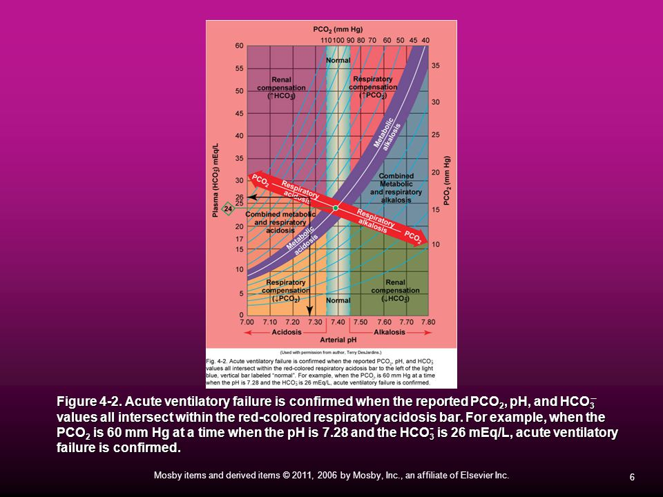 Figure 4-2. Acute ventilatory failure is confirmed when the reported PCO2, pH, and HCO3 values all intersect within the red-colored respiratory acidosis bar. For example, when the PCO2 is 60 mm Hg at a time when the pH is 7.28 and the HCO3 is 26 mEq/L, acute ventilatory failure is confirmed.