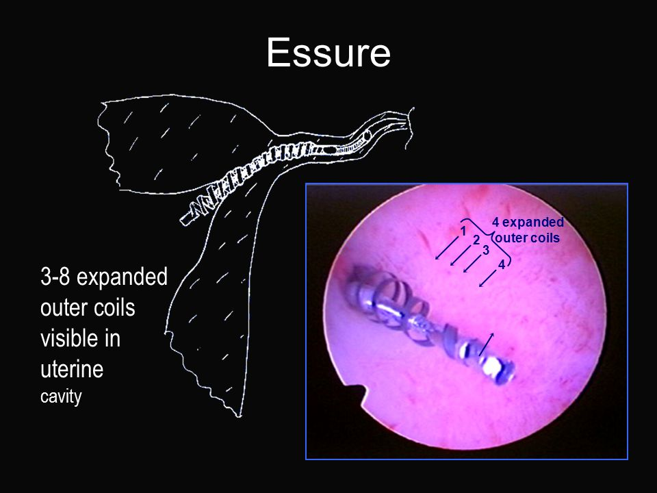 Essure 3-8 expanded outer coils visible in uterine cavity