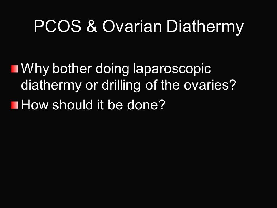 PCOS & Ovarian Diathermy